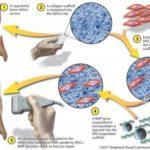 Зламані кістки вилікують за допомогою генної терапії і мікробульбашок