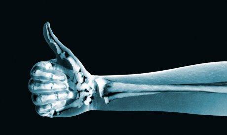 Нові ліки дозволять лікувати переломи простими уколами