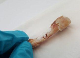 Зламані кістки тепер можна склеїти полімерною смолою